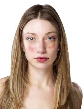 vörös pikkelyes folt jelent meg az arcán a pikkelysmr kezels szakasza