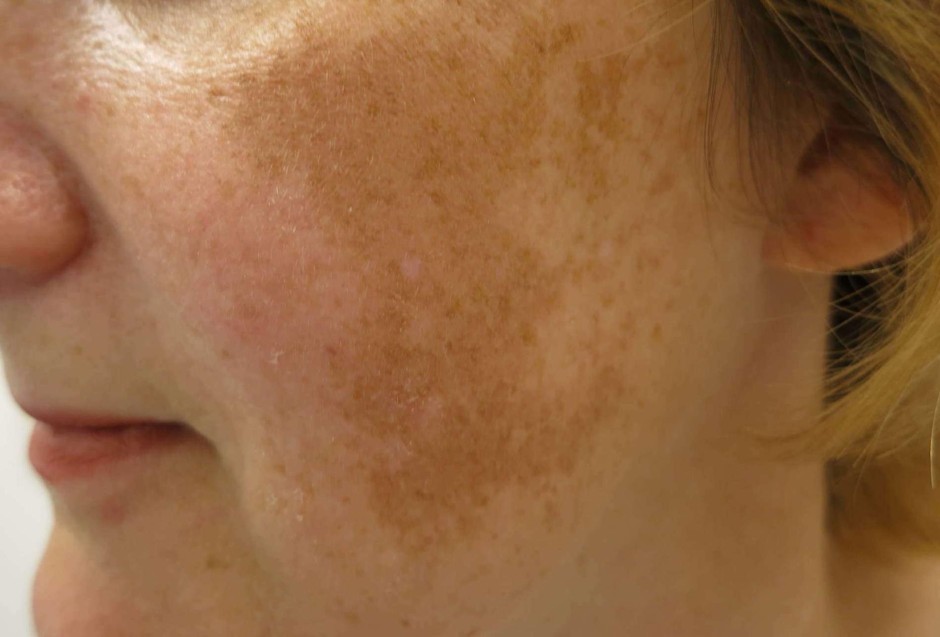 a bőrre nyomva vörös foltok maradnak, ami