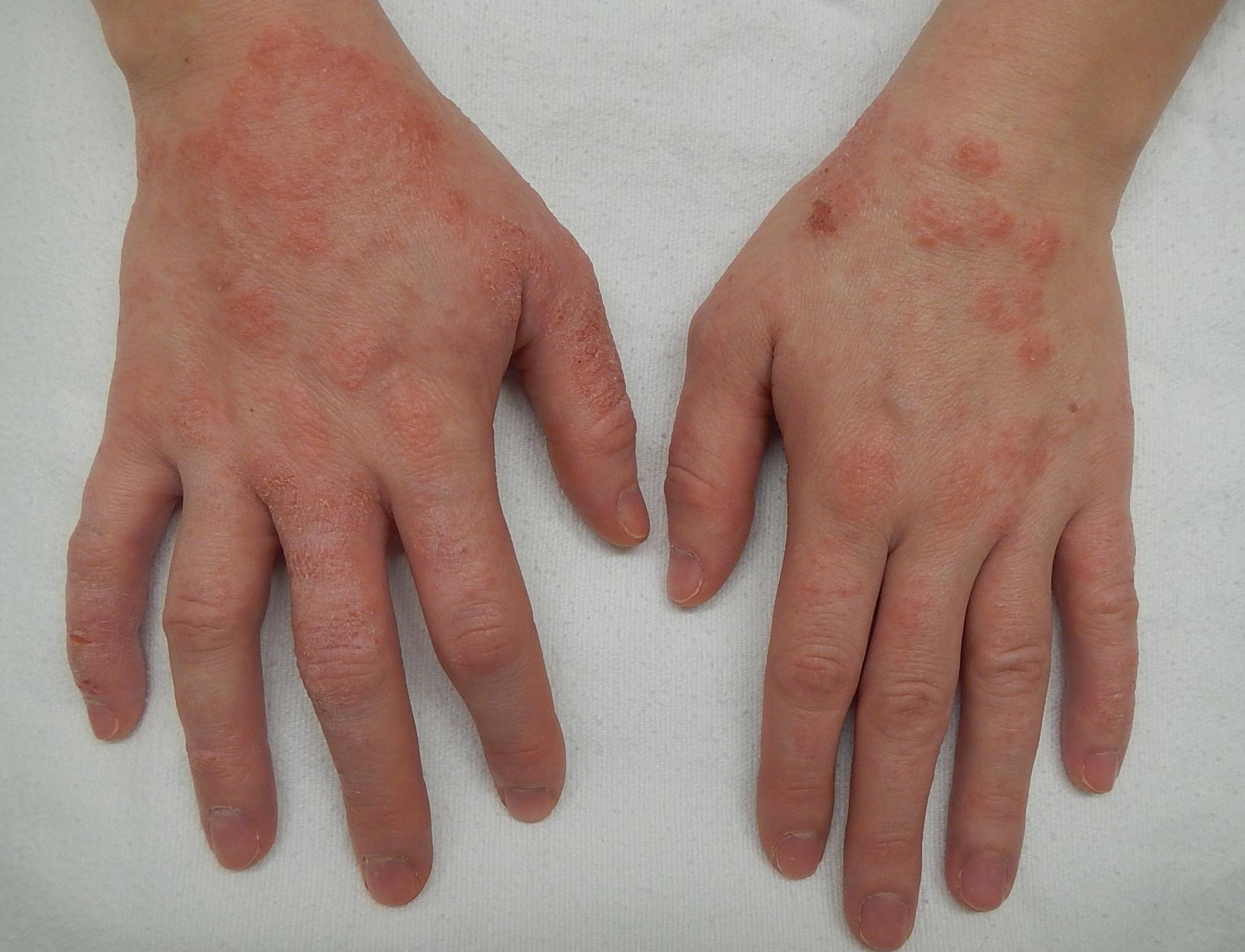 durva vörös folt a kezén