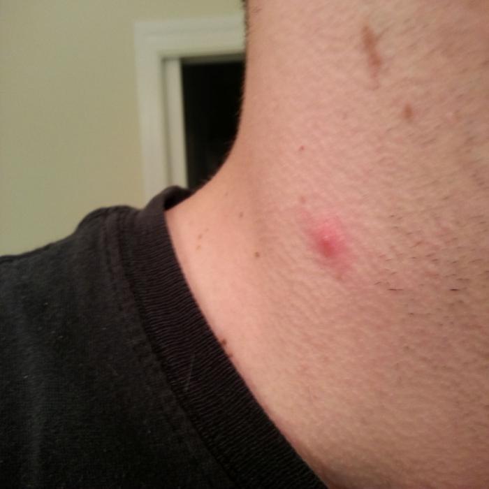vörös folt a nyakon lévő haj alatt viszket)