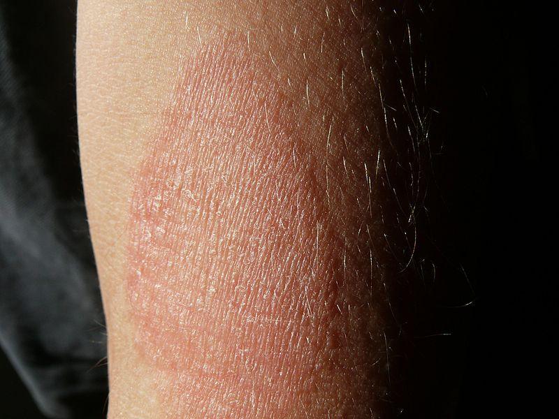 vörös száraz foltok a lábakon és a karokon)