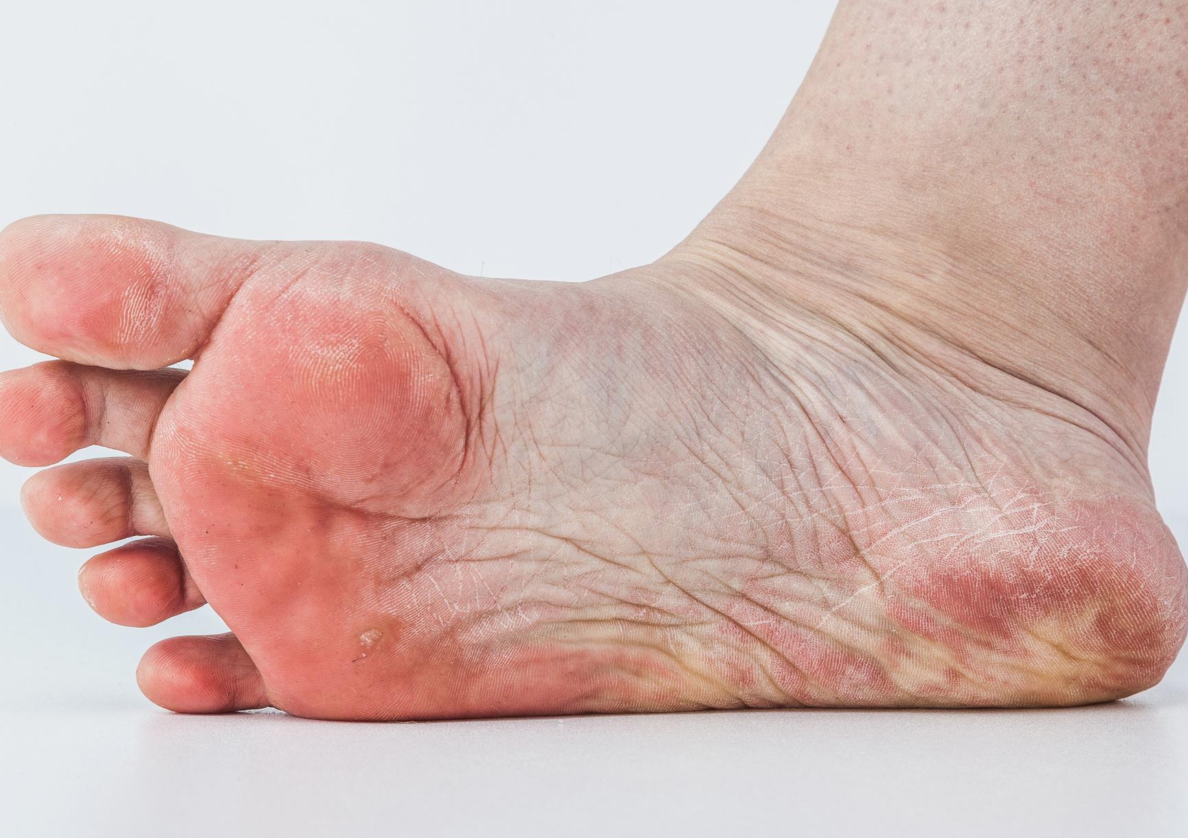 vizes vörös folt a lábán