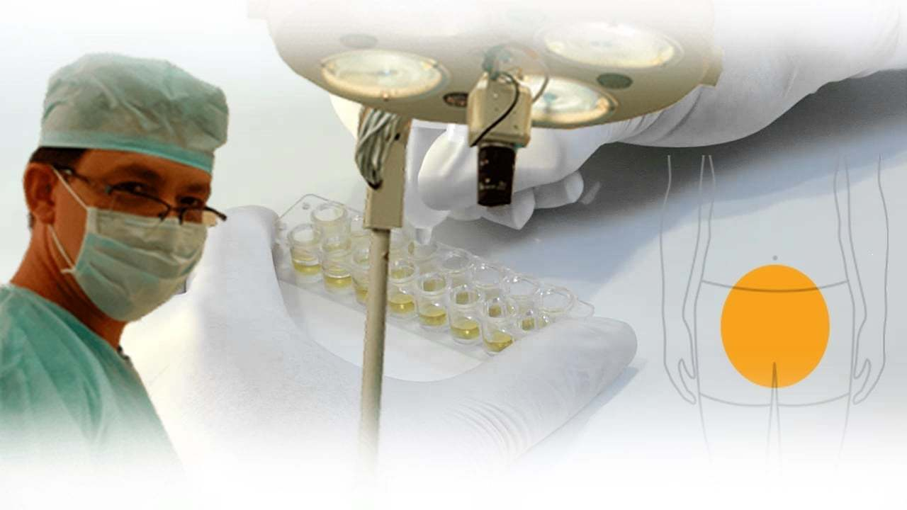 Készítmények a test pikkelysömörrel történő tisztítására
