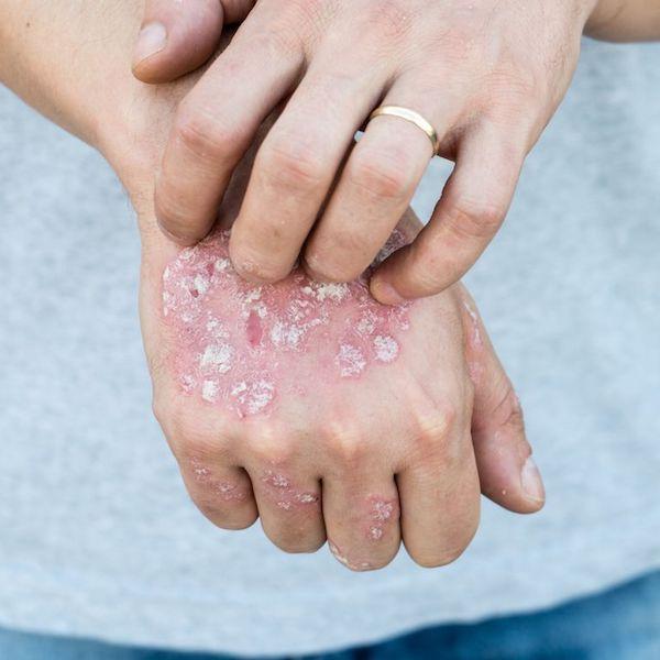 pikkelysömör kezelése a Dermatológiai Intézetben Szingapúr pikkelysömör kezelése