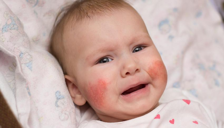 A gyermek arcán piros foltok jelentek meg