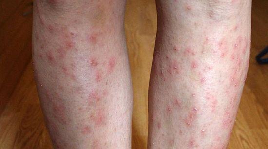 piros pelyhes folt az alsó lábszáron