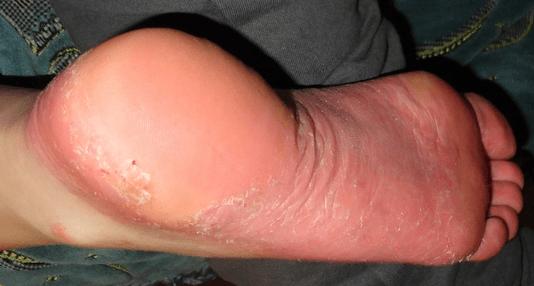 Piros, durva folt a lábon - Diszplázia