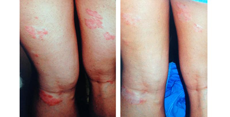 a lány testén vörös foltok vannak kenőcs pikkelysömör hajnalának kezelésére