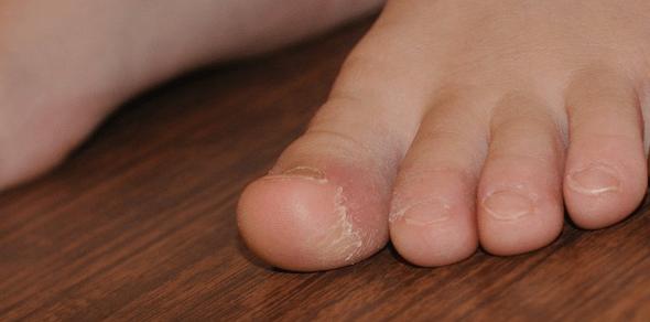 vörös foltok az egyik lábán, és forrók)