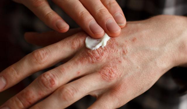 vörös pöttyök a lábán hogyan lehet gyógyítani a pikkelysömör fején otthon