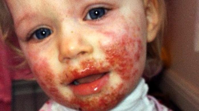 miért álmodik a vörös foltokban lévő arc
