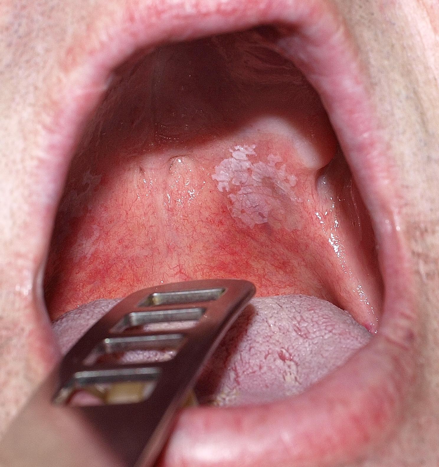 nepszabadsáfestekszakbolt.hu: Apró piros foltok a szájban (2) – Semmelweis Médiasarok