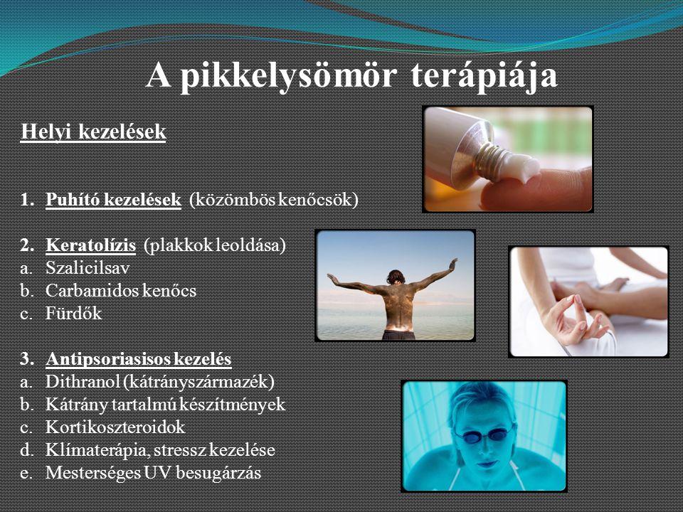 kátrány pikkelysömör kezelés ital)