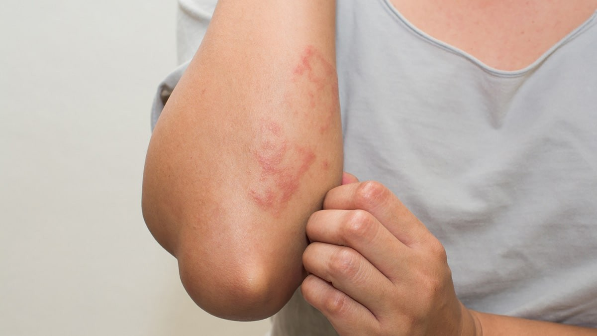 bőrkiütések vörös foltok formájában, viszketéssel a testen)
