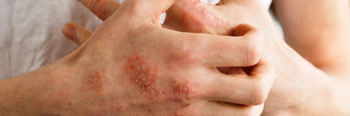 ekcma pikkelysömör dermatitis kezelése népi gyógymódokkal