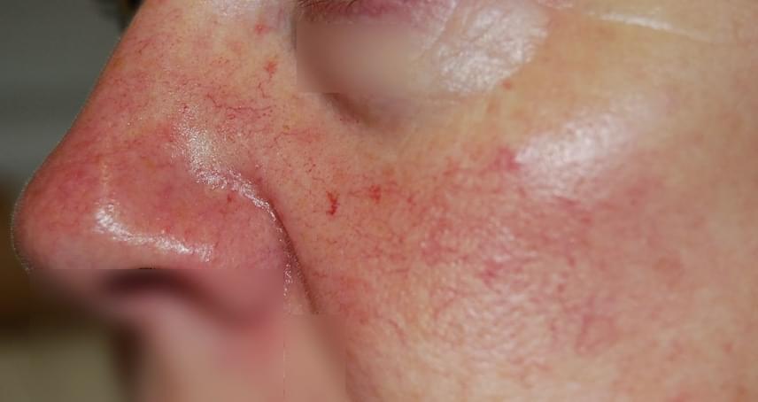 vörös kis foltok az arcon