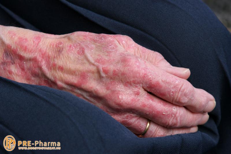 pikkelysömör a kezeken tünetek kezelése