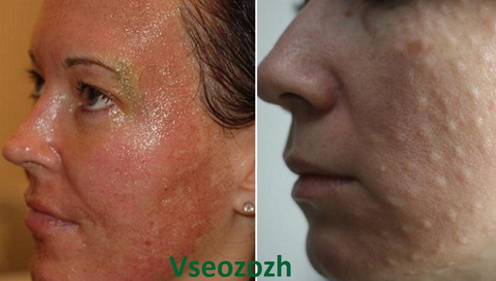 hogyan lehet eltávolítani a vörös foltokat a mezoterápia után)