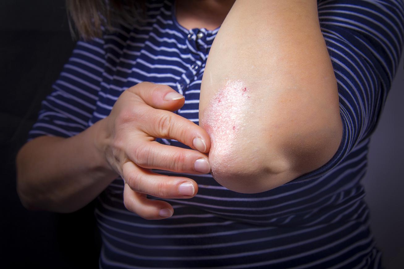 psoriasis kezelése Iránban)