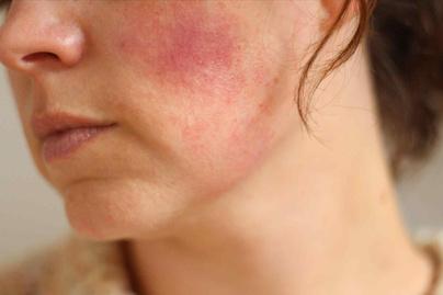 oufc pikkelysömör kezelésére vörös foltok a tenyér bőrén