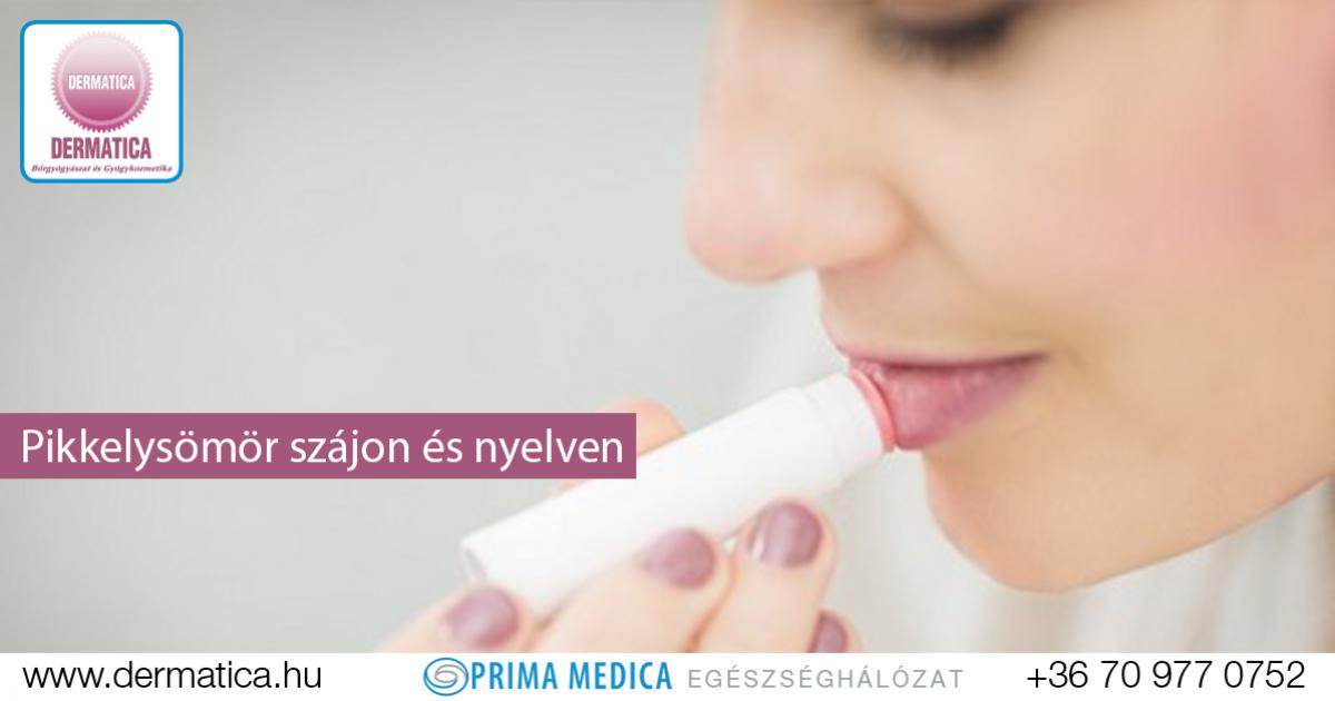 hogyan kell kezelni a pikkelysömör szájban