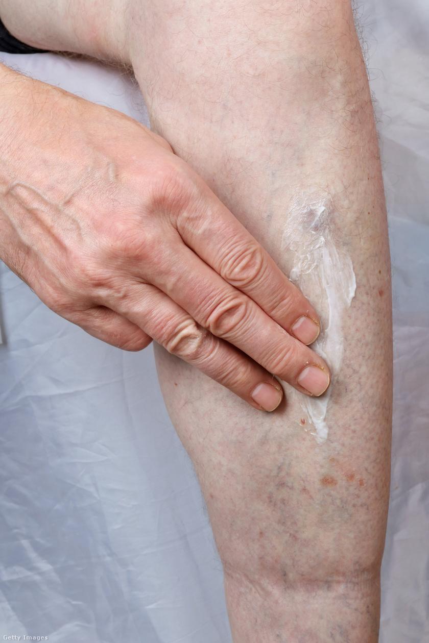 hogyan kell kezelni a vörös foltokat a lábakon viszketés)