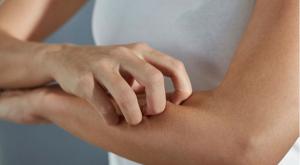 hagyományos gyógyító krém balzsam pikkelysömör hogyan lehet enyhíteni a száraz bőrt a pikkelysömörben