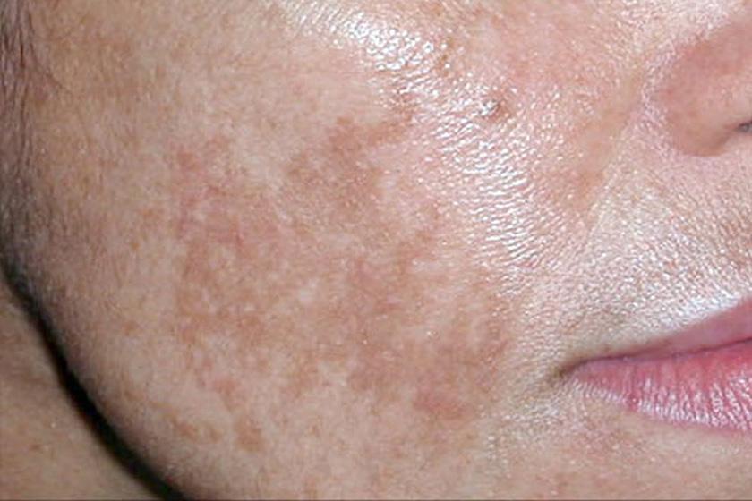 kiütés a bőrön vörös foltok formájában felnőtteknél hőmérséklet után vörös fájdalommentes folt a lábán