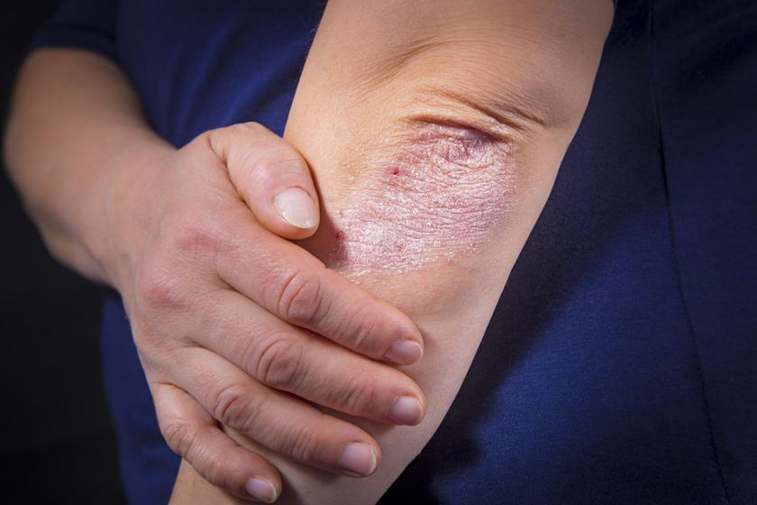 jó orvosság pikkelysömörre Alabai lábán vörös foltok vannak