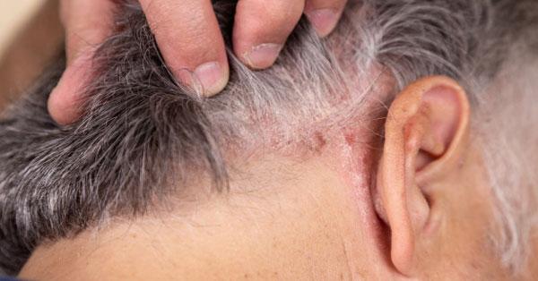 Cickafark pikkelysömör kezelése a bőrt vörös foltok borítják