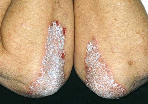 vörös foltok csomókkal a lábakon a testen az apró foltok vörösek és viszketőek