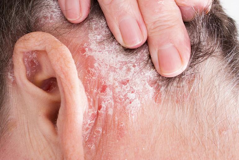 pikkelysömör a fejbőrön tünetek és kezelés fotó)