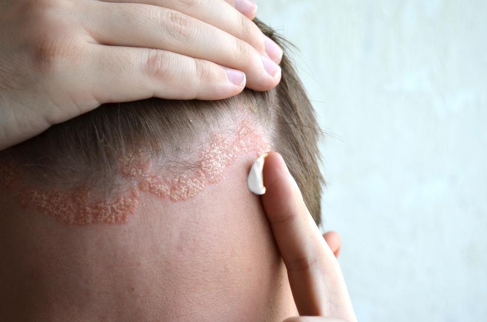 pikkelysömör kezelése a fejen népi gyógymódokkal otthon