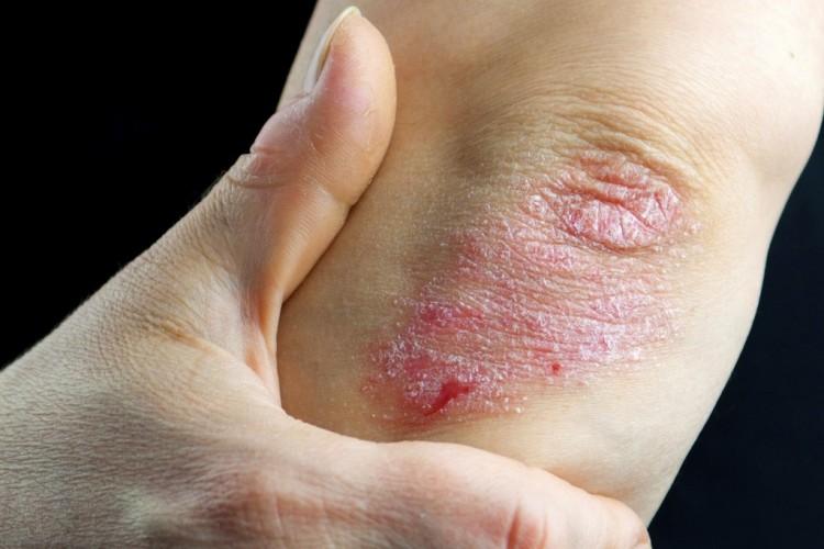 vörös foltok a kezeken viszket kezelés pikkelysömör fotó kezdeti szakasz kezelési képek
