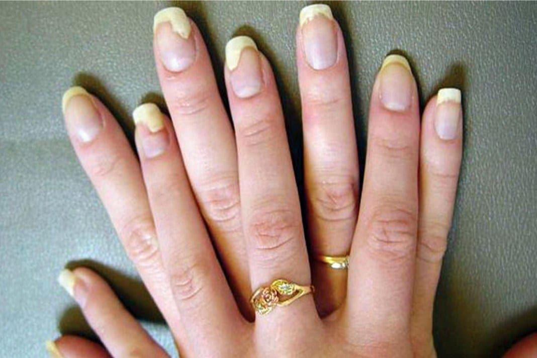 pikkelysömör kezelése szalidollal pontosan meghatározza a bőrön lévő vörös foltokat