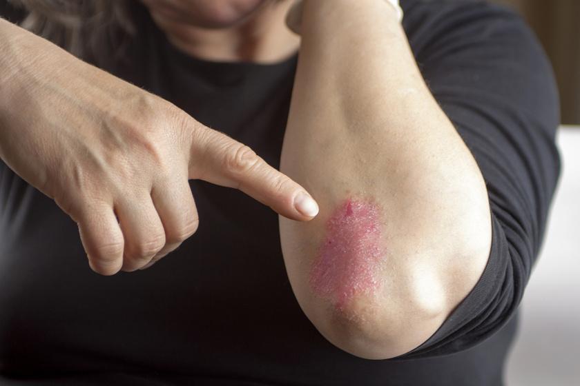 pikkelysömör kezelésének prognózisa fotó piros kerek foltok a bőrön