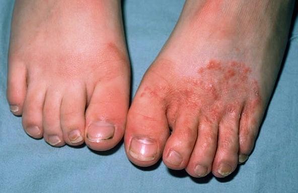 pikkelysömör és lábgomba kezelése)