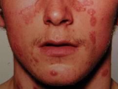 seborrheic pikkelysömör az arcon hogyan kell kezelni vörös foltok az arcon megfázással