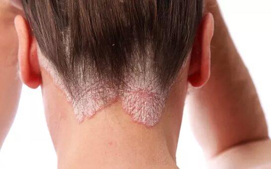 seborrheic pikkelysömör tüneteinek kezelése a vállán vörös folt viszket