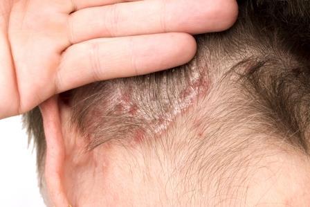 seborrheás dermatitis vagy pikkelysömör kezelése)