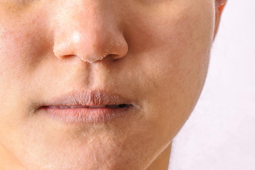száraz bőr az arcon és vörös foltok)