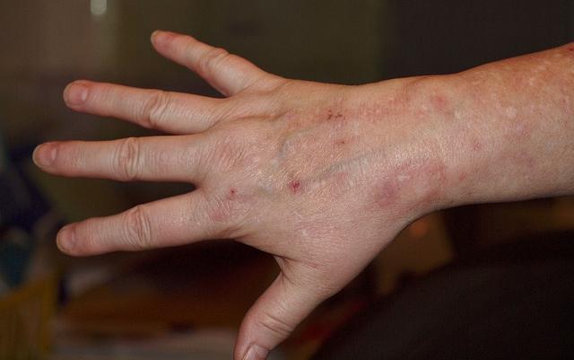 száraz vörös folt a kéz bőrén