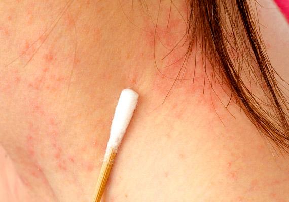 vörös duzzadt folt a bőr fotóján)