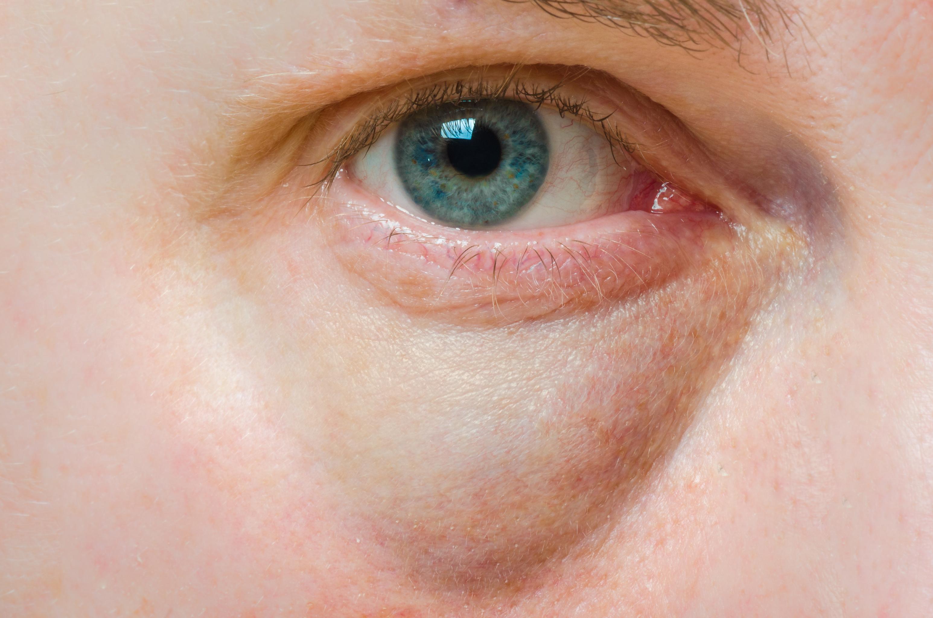vörös folt a szem alatt hámló fotó