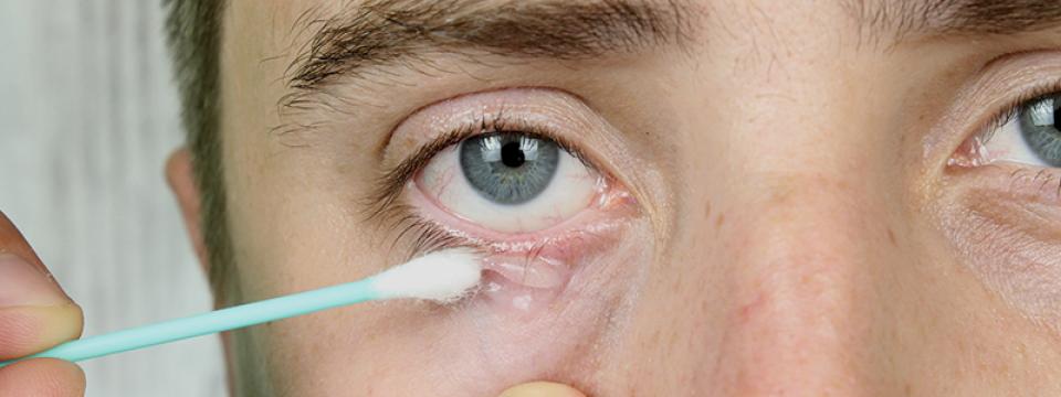 Gyakran bevérzik a szeme? Ezek okozhatják   BENU Gyógyszertárak