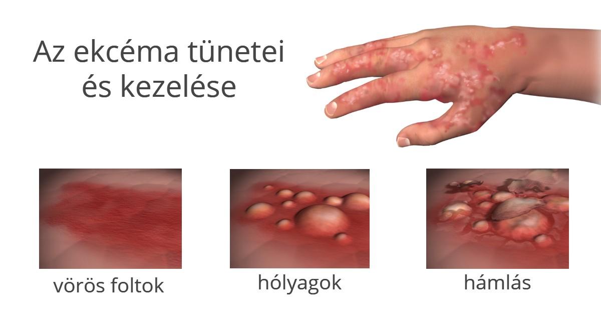 vörös folt hólyagokkal jelent meg a kézen