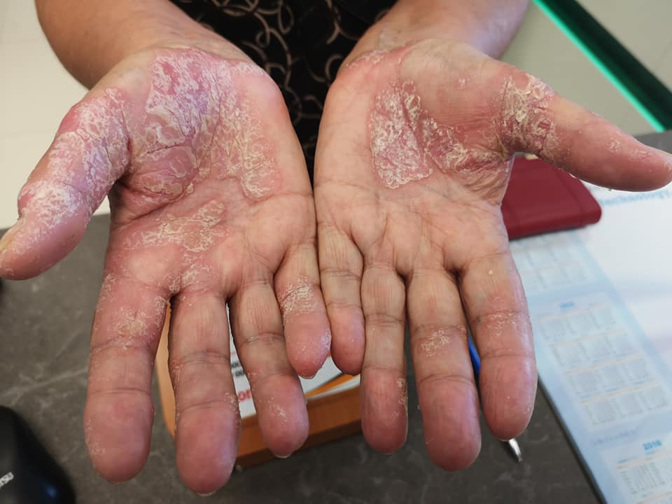 vörös foltok a kezek bőrén, mint kezelni)