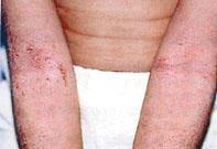 Vörös foltok a könyökön: a megjelenés okai - Klinikák