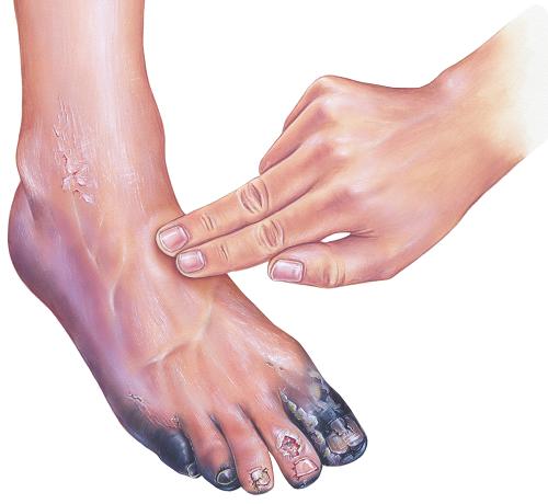 vörös foltok a lábon cukorbetegségben