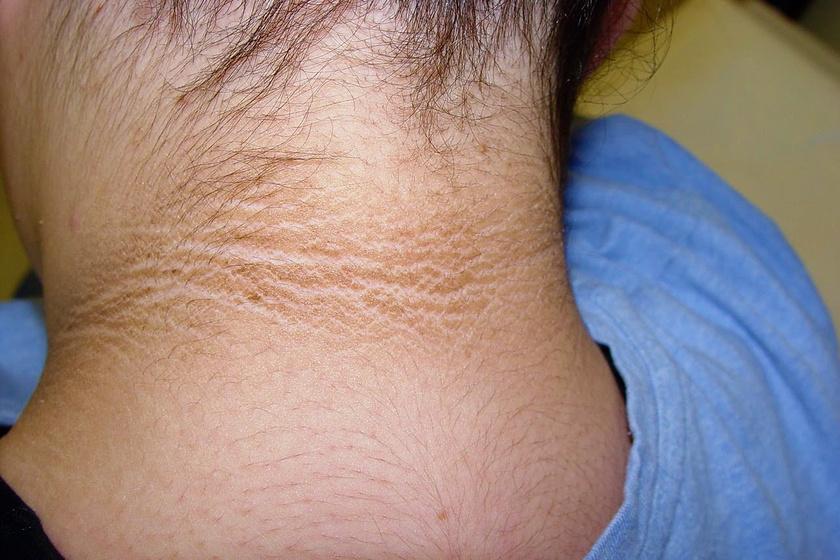 vörös foltok a nyakon, a karokon és a gyomorban